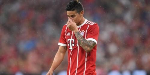 Bayern de Múnich: La lesión de James no es grave